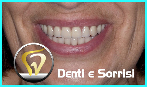 dentista-low-cost-albania-12