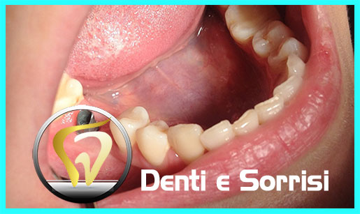 turismo-dentale-in-albania-costi-15