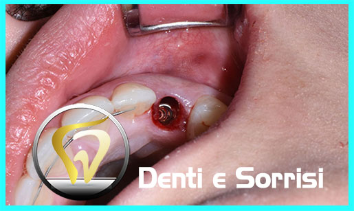 turismo-dentale-in-albania-costi-16