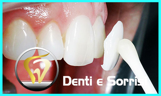 turismo-dentale-in-albania-costi-17