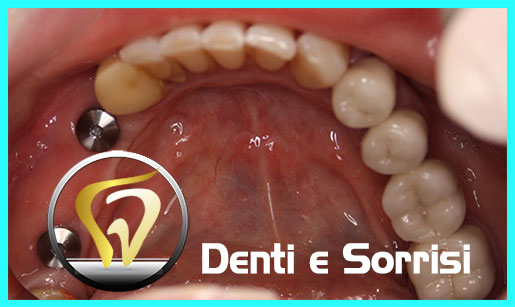 turismo-dentale-in-albania-costi-19