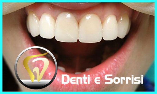 turismo-dentale-in-albania-costi-21