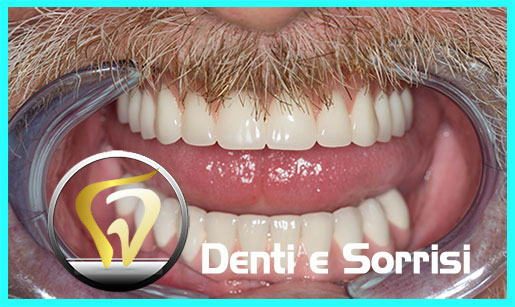 turismo-dentale-in-albania-costi-24