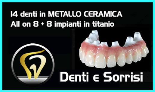 turismo-dentale-in-albania-costi-9