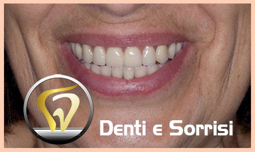 dentista-low-cost-in-croazia-12