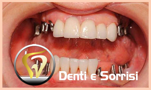dentista-low-cost-in-croazia-14
