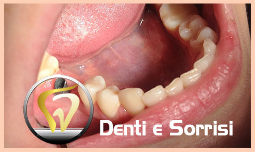 dentista-low-cost-in-croazia-15