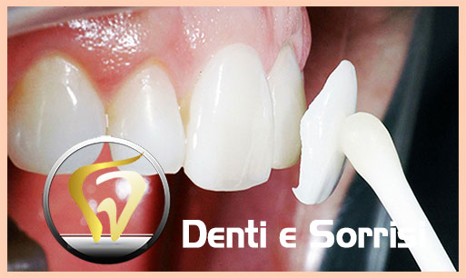 dentista-low-cost-in-croazia-17