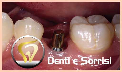 dentista-low-cost-in-croazia-22