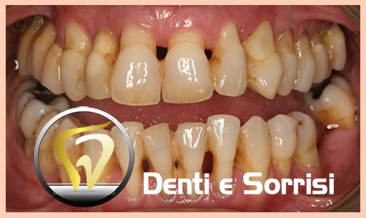 dentista-low-cost-in-croazia-23