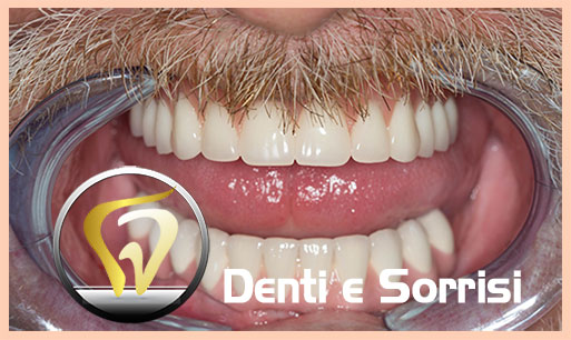 dentista-low-cost-in-croazia-24