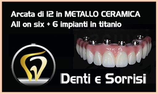dentista-low-cost-in-croazia-8