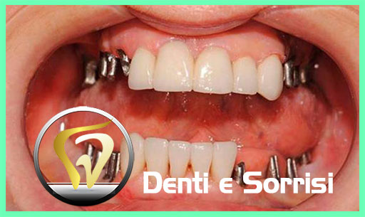dentista-in-serbia-14