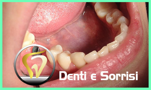 dentista-in-serbia-15
