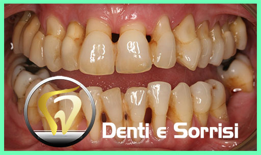 dentista-in-serbia-23