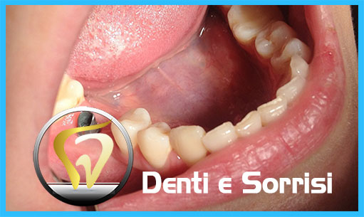 studio-dentistico-in-ungheria-15
