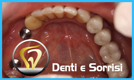 studio-dentistico-in-ungheria-19