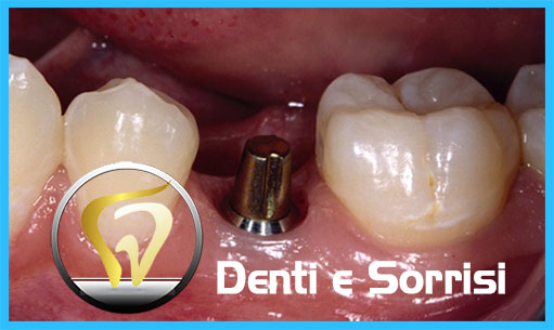 studio-dentistico-in-ungheria-22