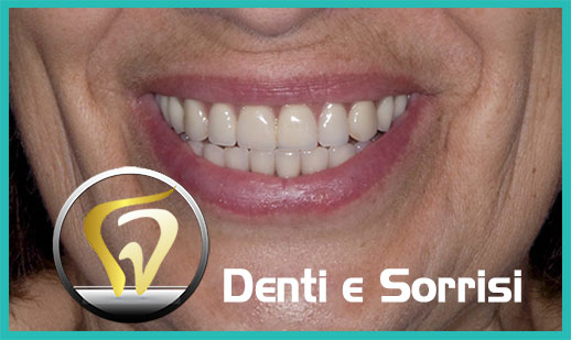 Dentista low cost a Messina prezzi 12