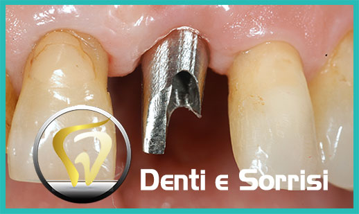 Dentista low cost a Messina prezzi 13