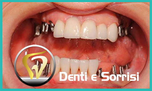 Dentista low cost a Messina prezzi 14