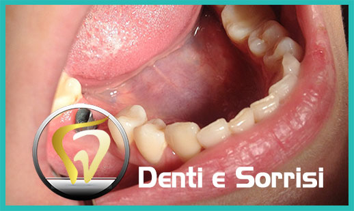 Dentista low cost a Messina prezzi 15