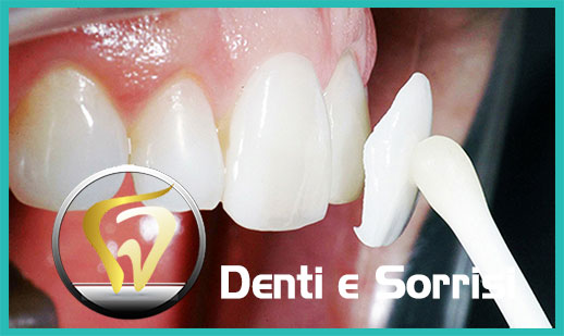 Dentista low cost a Messina prezzi 17