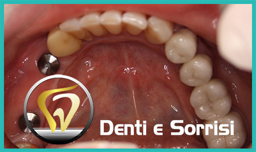 Dentista low cost a Messina prezzi 19