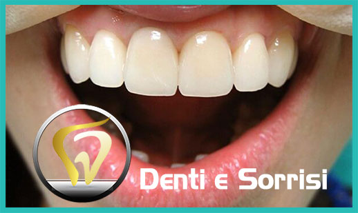 Dentista low cost a Messina prezzi 21
