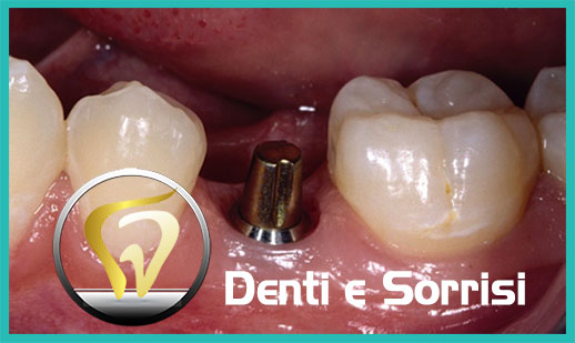 Dentista low cost a Messina prezzi 22