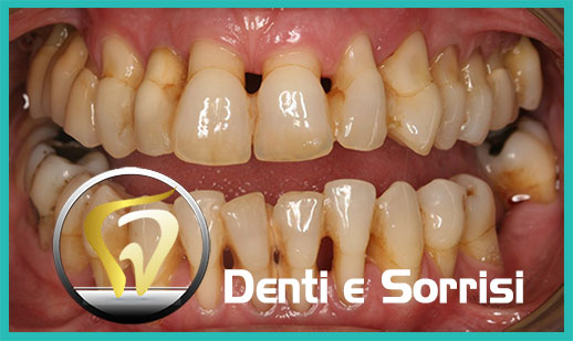 Dentista low cost a Messina prezzi 23