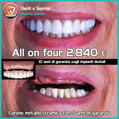 Dentista low cost a Messina prezzi 25