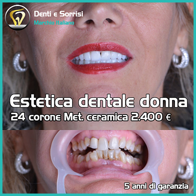 Dentista low cost a Messina prezzi 27