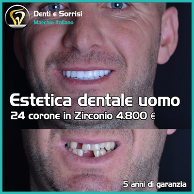 Dentista low cost a Messina prezzi 28