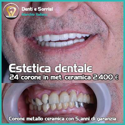 Dentista low cost a Messina prezzi 29