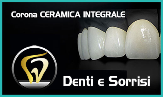 Dentista low cost a Messina prezzi 3