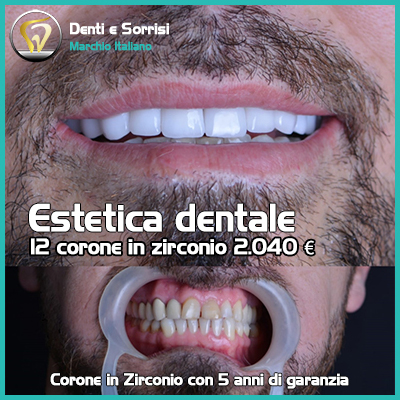 Dentista low cost a Messina prezzi 30