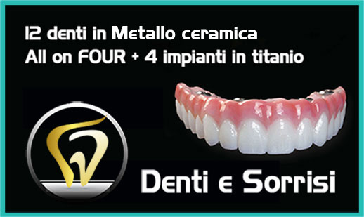Dentista low cost a Messina prezzi 7