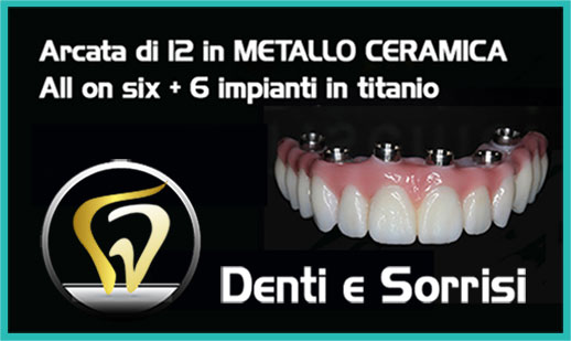 Dentista low cost a Messina prezzi 8