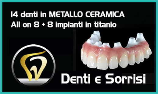 Dentista low cost a Messina prezzi 9
