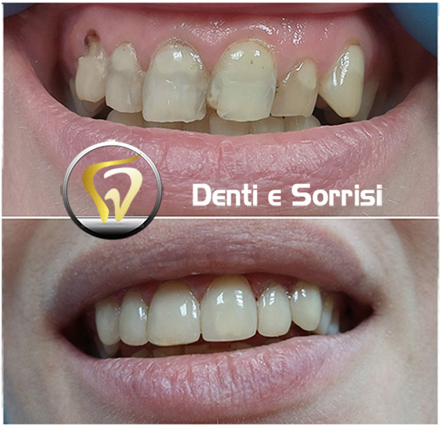 Dentista low cost a Messina prezzi c