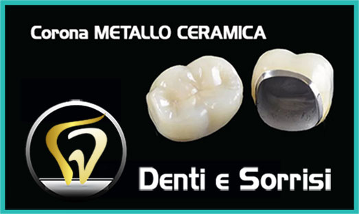 Dentista low cost a Caserta 1