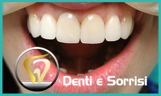 Dentista low cost a Palermo 21