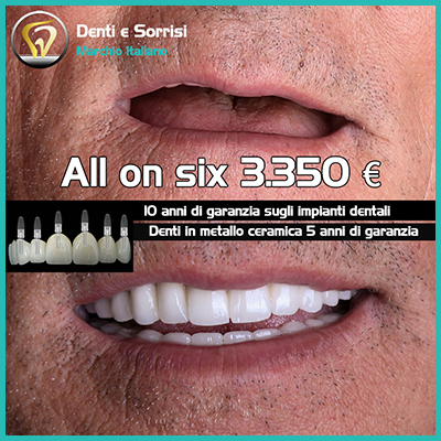 Dentista low cost a Palermo 26