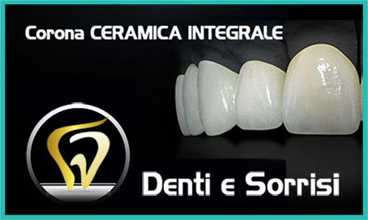 Dentista low cost a Caserta 3
