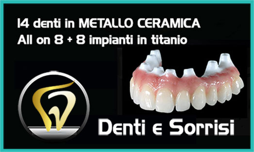 Dentista low cost a Novara 9