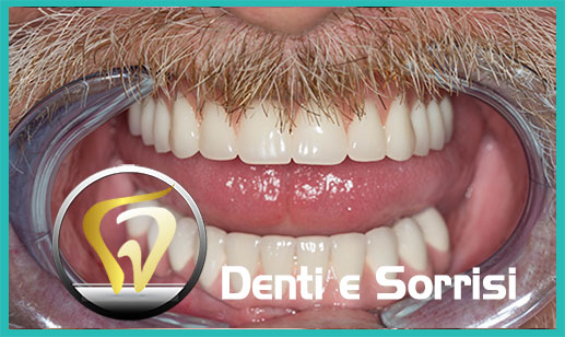 Dentista a Lavello 24