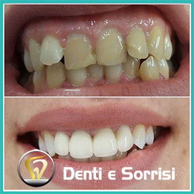 Dentista a Terracina c